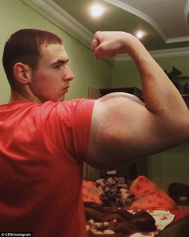 4635115600000578-5070551-Pumped_up_Synthol_which_Mr_Tewreshin_injects_regularly_is_made_u-a-25_1510332728888