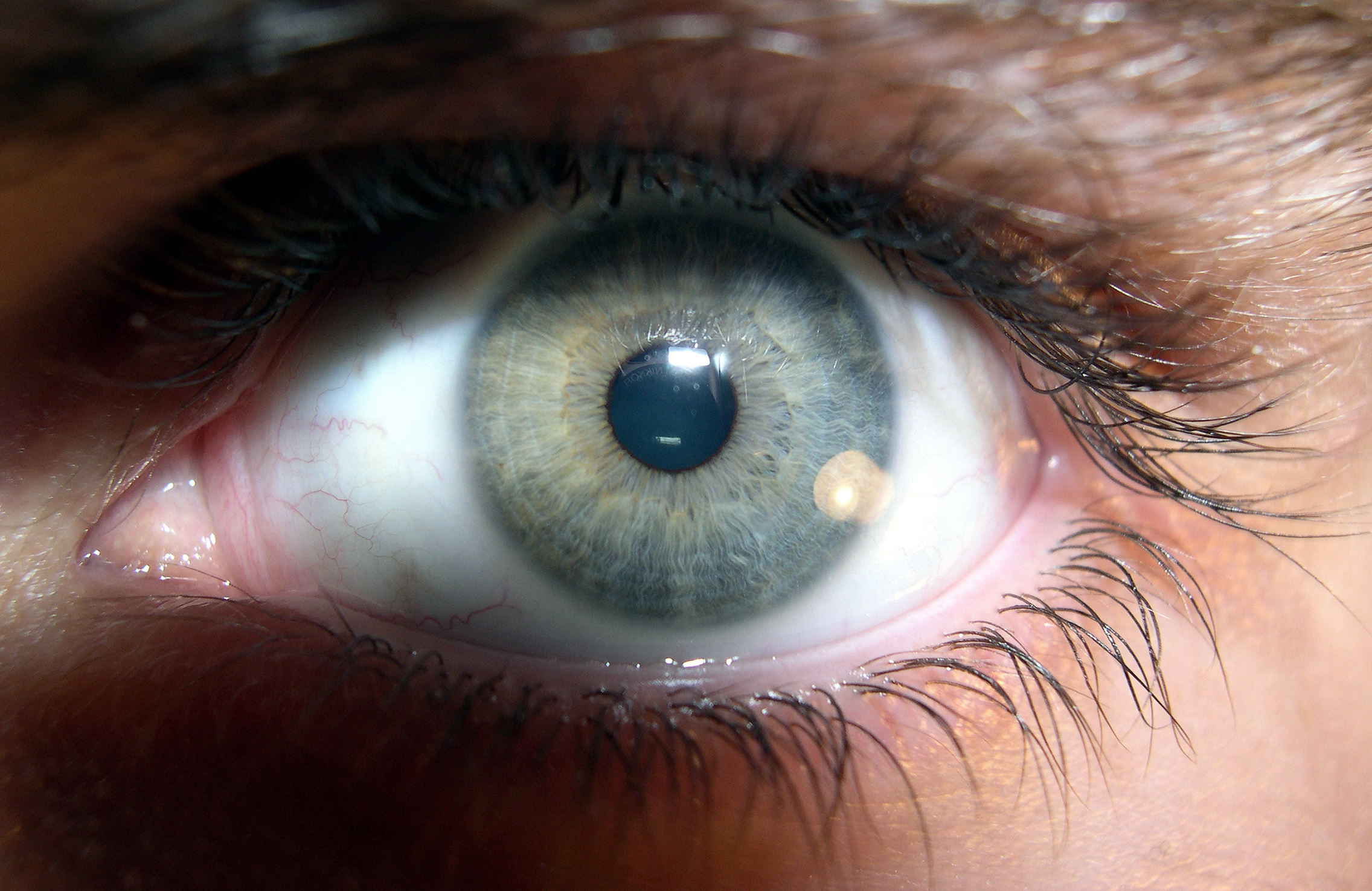 Brown_human_eye_(2)